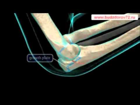 Перелом локтевой кости - YouTube