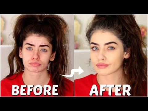 How To Cover Acne & Blemishes (NON CAKEY & EASY)   Jessie B