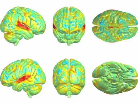 The Tango Brain | How Music Affects the Brain