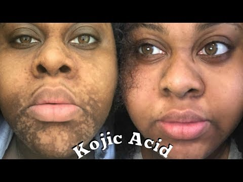 4 MONTHS KOJIC ACID (How I Used It)