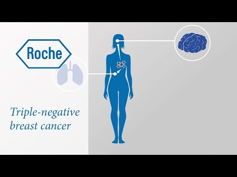 Risk factors for developing triple-negative breast cancer