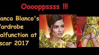 Blanca Blanco Wardrobe Malfunction at the Oscar 2017
