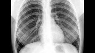 видео Рентген легких при пневмонии, ее признаки на снимках и описание