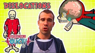 Science for kids | Body Parts - Dislocations | Experiments for kids | Operation Ouch