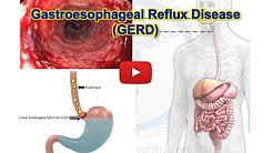 GERD, Gastroesophageal reflux disease - Heartburn - MADE EASY