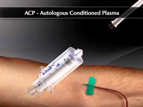 restaurare comună în timpul condromalaciei tratamentul articulației gleznei după subluxare