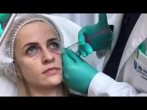 Заполнение носослезных борозд филлером YouTube
