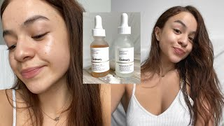 HOW I CLEARED MY SKIN | Skin Care Routine 2020 | The Ordinary