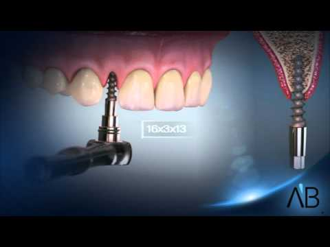 AB Dental Implants - Narrow and One Piece implants - YouTube