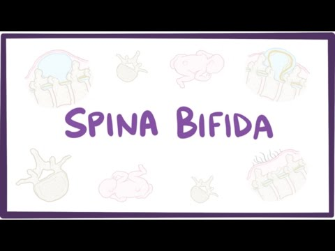 Spina bifida myelomeningocele, meningocele, occulta  causes, symptoms, treatment