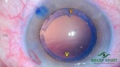 Intelli Axis Femto cataract surgery @ sharp sight