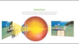 Eye Normal Vision H264