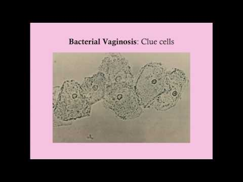 Bacterial Vaginosis In Pregnancy - CRASH! Medical Review Series