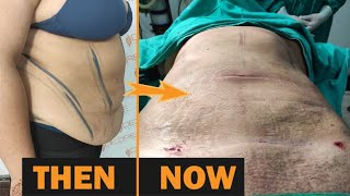 360 degree Abdomen & ARM Liposuction by Dr. Prashant Yadav @Dezire Clinic