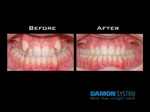 Image Result For Damon System Braces Vs