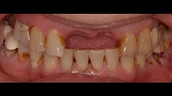 Part 2-Dental Implant Placement with Bone Grafting and Membrane