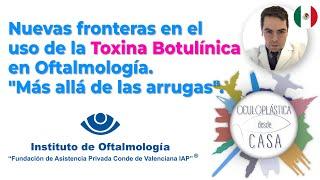 """Nuevas fronteras en el uso de la Toxina Botulínica en Oftalmología. """"Más allá de las arrugas""""."""