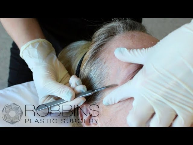 Non-Surgical Treatment for Anti- Aging Dermaplane Procedure- Robbins Plastic Surgery in Nashville TN