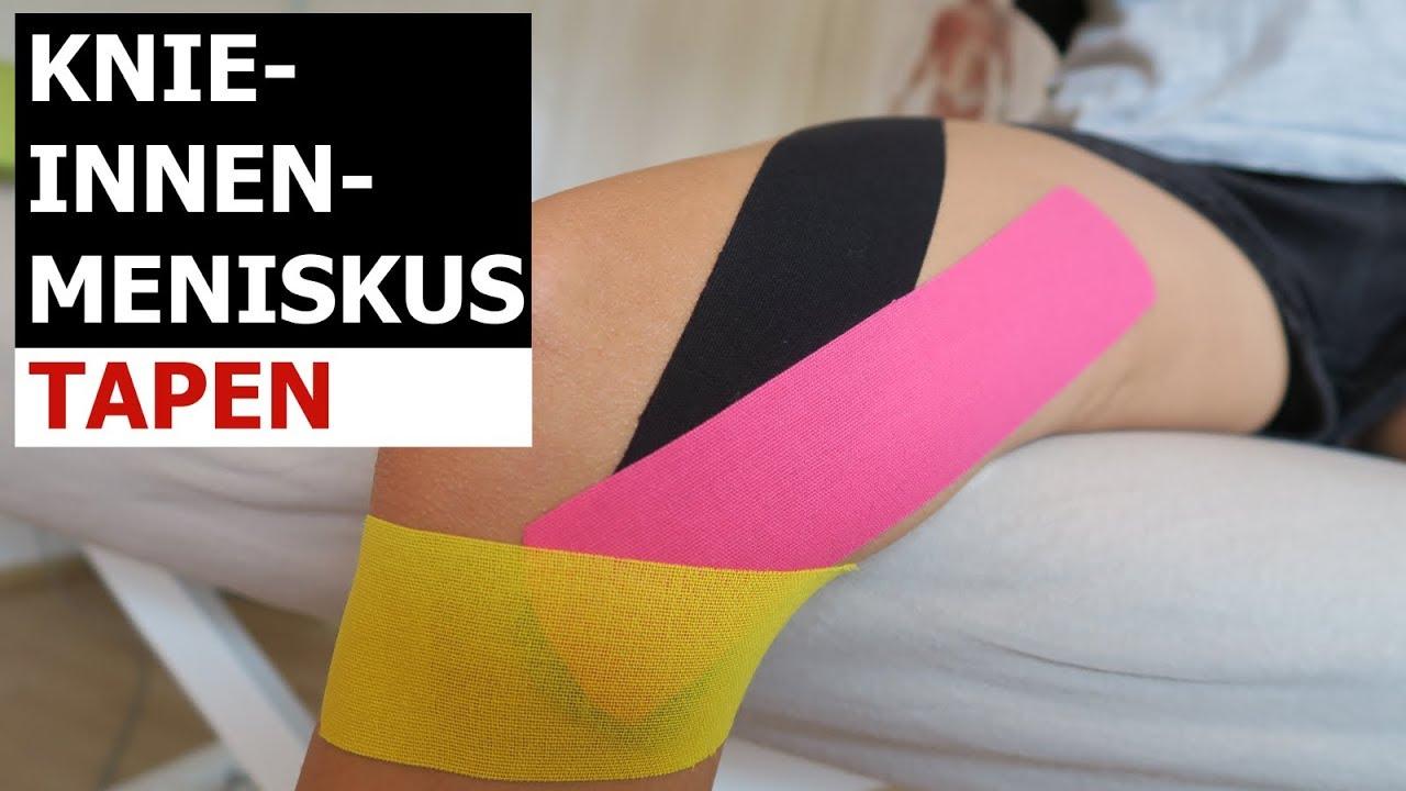 Knie tapen innenbandzerrung Innenbanddehnung im
