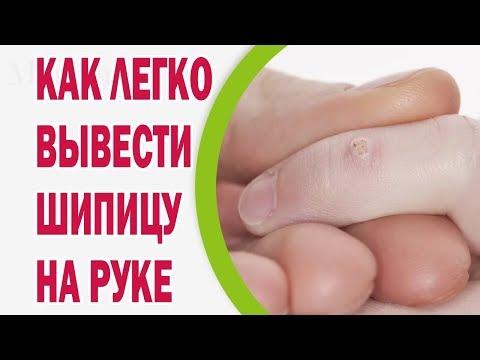 Как вывести шипицы на пальцах рук