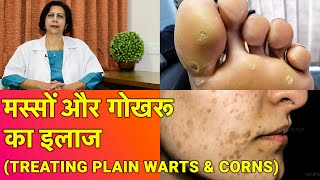 तिल, मस्से और गोखरू का ईलाज || Treatment of Plain Warts, Corns & Skin Tags