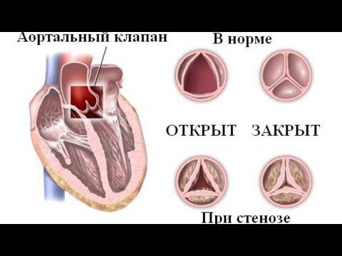 Аортальный стеноз.Как выявить и чем опасен.