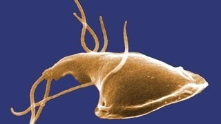 Giardia: What You Should Know