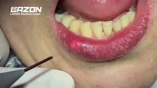 SOLASE Dental Laser Treatment for Herpes