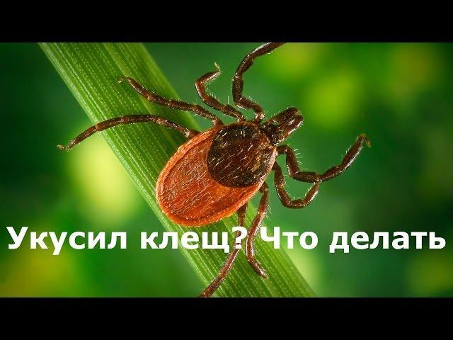 Укусил клещ, что делать? Укус клеща и насекомых - Доктор Комаровский, неотложная помощь