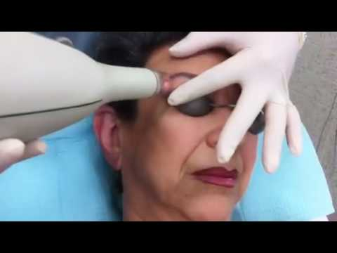 Eyebrow tattoo removal using the yag 5 palomar laser part for Eyebrows tattoo removal laser