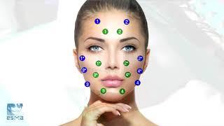 Процедура миостимуляции, коррекция овала лица. Миостимулятор ЭСМА