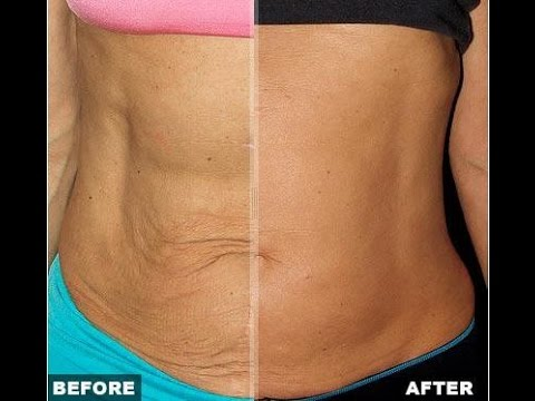 Loose Skin After Weight Loss Or Pregnancy What To Do
