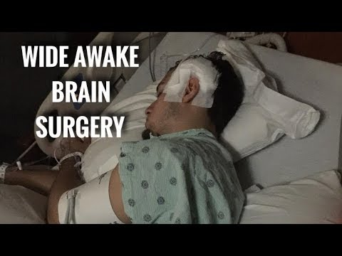 7 HOUR - WIDE AWAKE BRAIN SURGERY (FULL DAY OF EATING - EP.