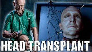 World's First Human Head Transplant Was A Success