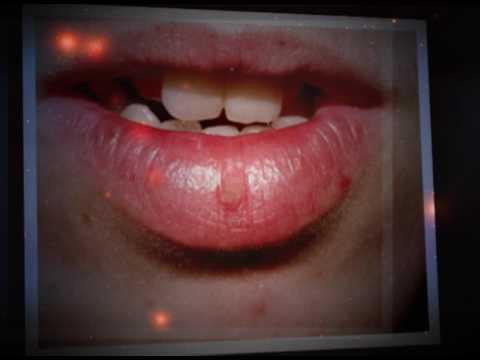 eliminar verruga en el labio