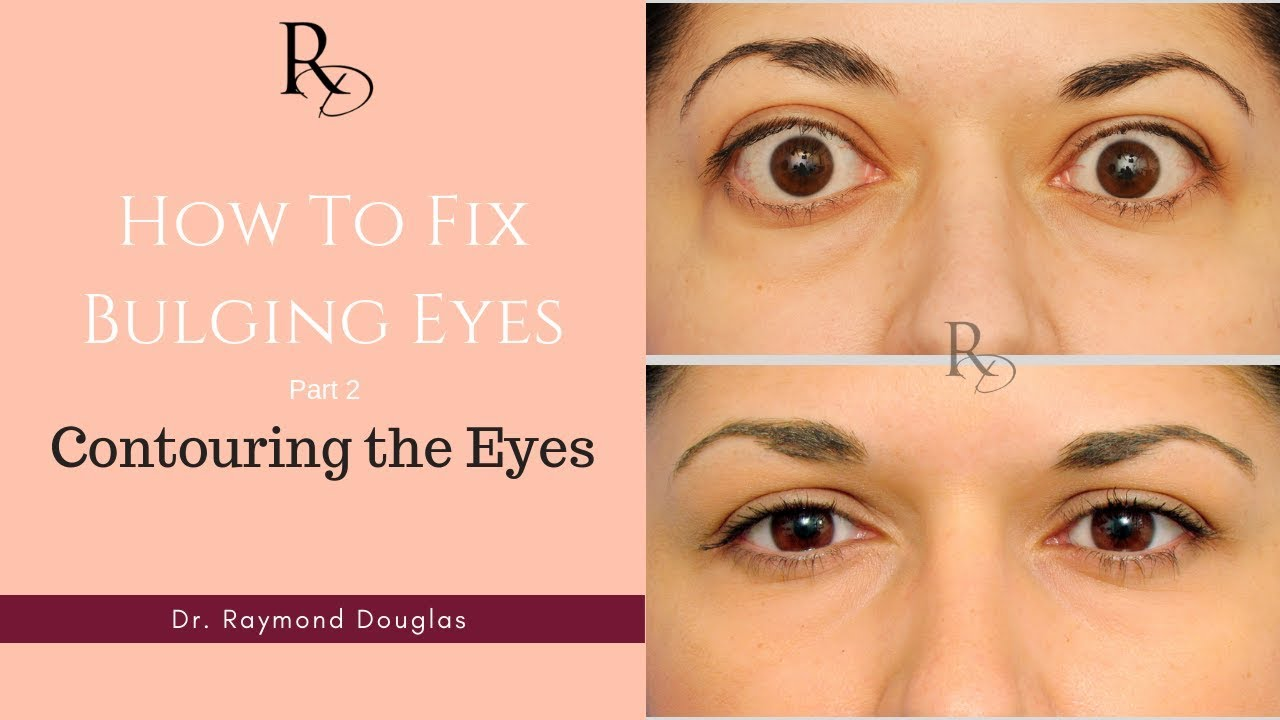 How To Fix Bulging Eyes Part 2 Contouring The Eyes Youtube