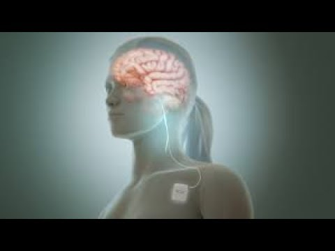 Cranial Electrotherapy Stimulation, Blue Z Water and Molecular Hydrogen Therapy // Blue Z Water