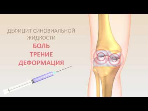Остеоартроз коленного сустава: причины, симптомы, лечение