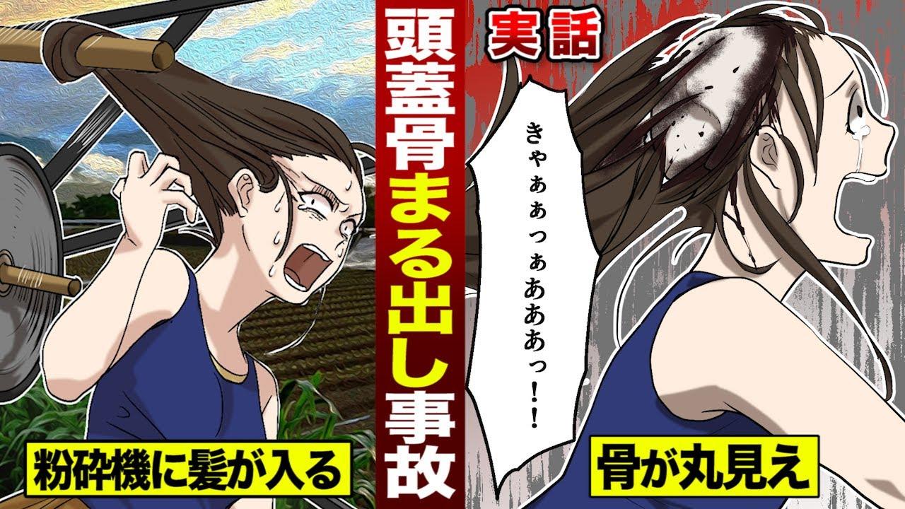 【実話】粉砕機に髪を巻き込まれ…頭蓋骨が丸出しになった女。