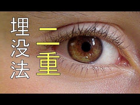 二重整形(埋没法)【閲覧注意】【手術動画】Double Eyelid Surgery
