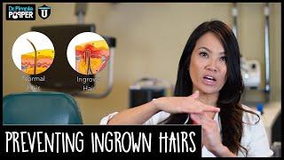 Preventing Ingrown Hairs - POP QUIZ!