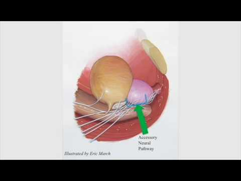 An Updated Approach To Incremental Nerve Sparing For Robot Assisted Radical Prostatectomy Youtube