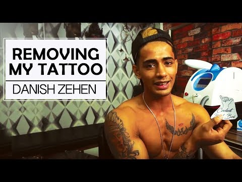 Removing My Hand Tattoo - Why Did I Do It? | Danish Zehen