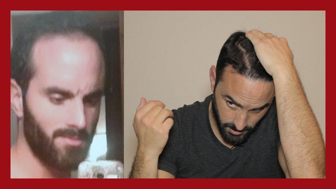 Déçu par ma greffe de cheveux ? Résultat 2 ans après !