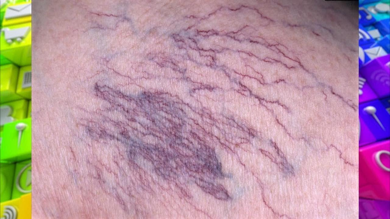 How to Identify and Treat Visible Leg Veins
