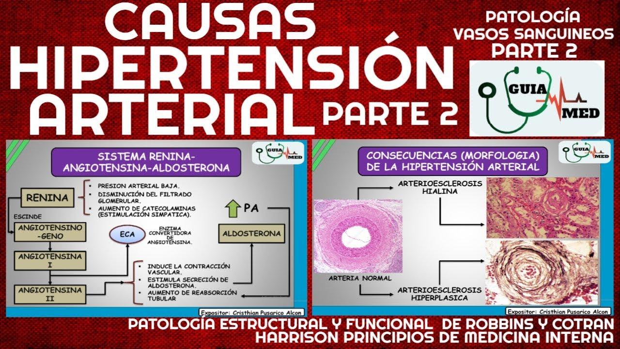 SINTOMAS DE HIPERTENSIÓN ARTERIAL (FISIOPATOLOGÍA PARTE 2..