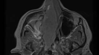 Sinonasal Squamous Cell Carcinoma