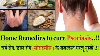 चर्म रोग, छाल रोग (सोराइसिस) के जबरदस्त घरेलू नुस्खे : Home Remedies to cure Psoriasis !!