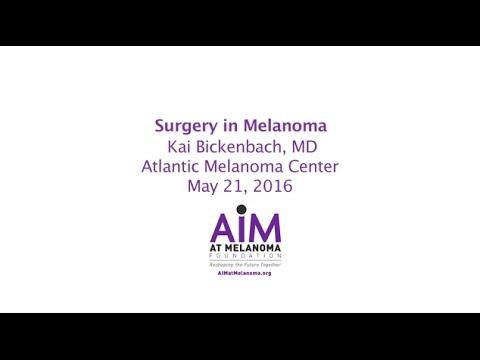 Surgery in Melanoma