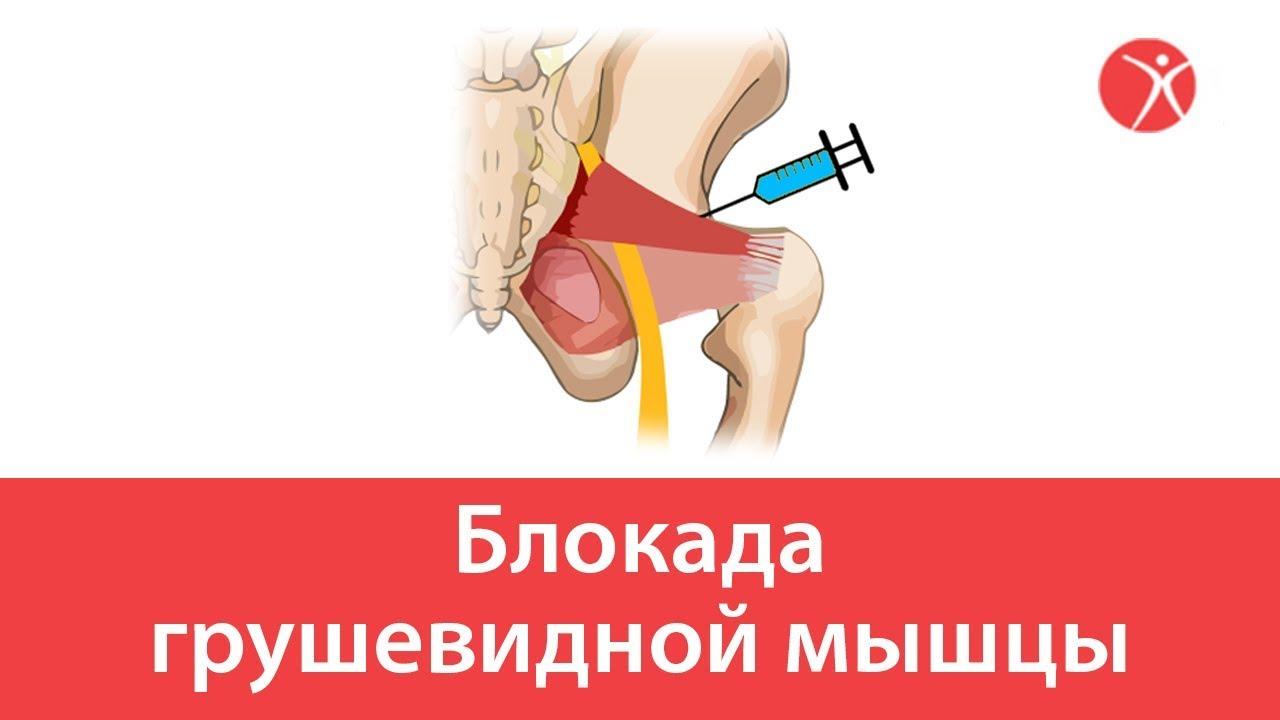 Блокада грушевидной мышцы